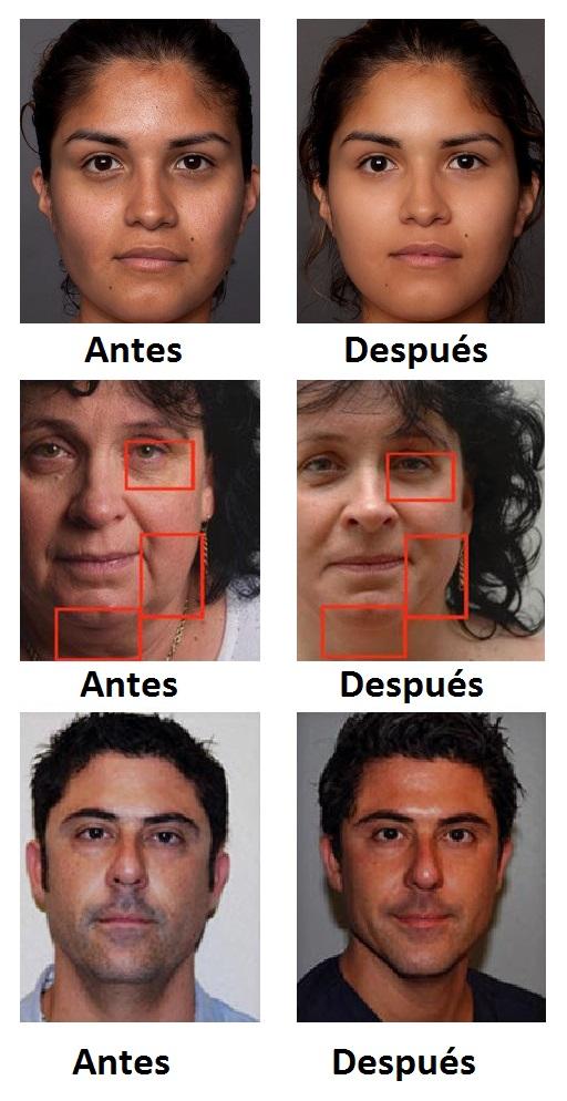 55.2. mesoterapia facial antes y despues