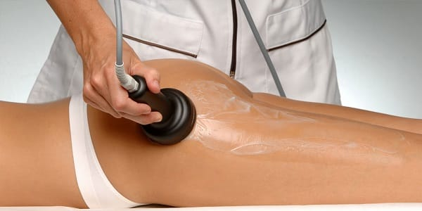 Mesoterapia virtual corporal (mesoterapia sin agujas)