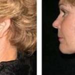 Mesoterapia para cuello y papada