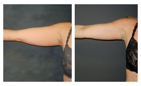 Mesoterapia para brazos y piernas