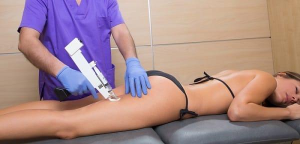 Opiniones del tratamiento de mesoterapia
